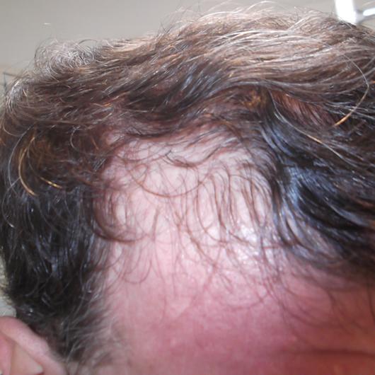 alopecia-areata-29