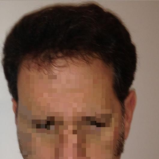 alopecia-areata-30