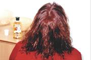 alopecia-areata-04