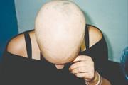 alopecia-areata-05