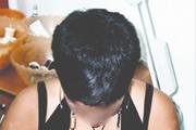 alopecia-areata-06