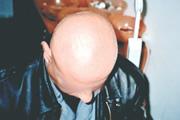 alopecia-areata-09