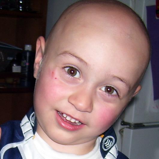 alopecia-areata-15