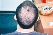 male-pattern-alopecia-01