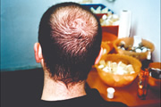 male-pattern-alopecia-08