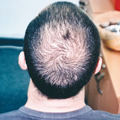 male-pattern-alopecia-01sqr (1)