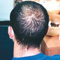 male-pattern-alopecia-01sqr (2)