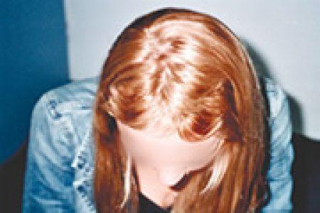 alopecia-areata-02