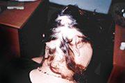 alopecia-areata-03