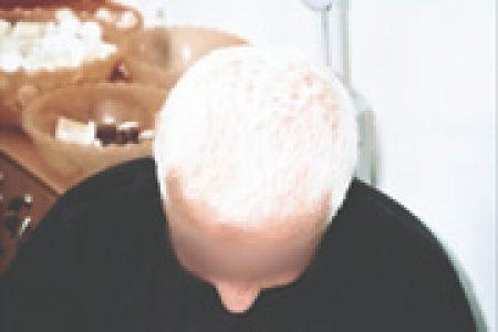 alopecia-areata-10