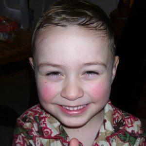alopecia-areata-16