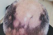 alopecia-areata-33
