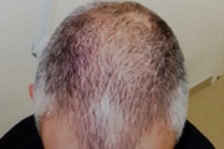 alopecia-areata-34