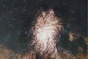 alopecia-areata-35