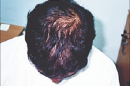 male-pattern-alopecia-04